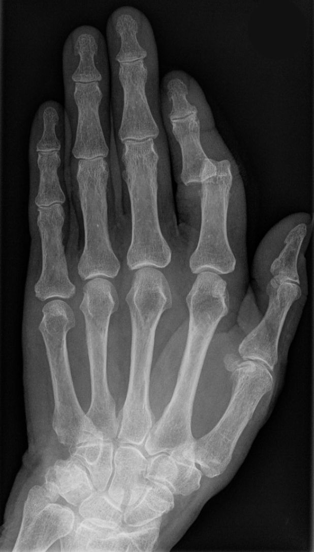 Zdjęcie RTG zwichniętego palca