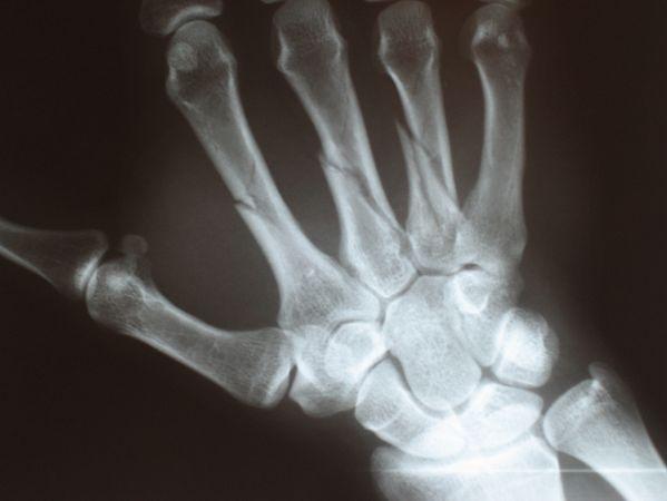 Zdjęcie RTG złamanej kości śródręcza