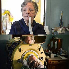"""Zarażona polio. Ostatnia kobieta w """"żelaznym płucu"""" (WIDEO)"""