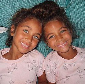 Najpiękniejsze bliźniaczki na świecie? Ludzie oszaleli na ich punkcie