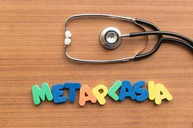 Metaplazja - przyczyny, objawy i leczenie. Metaplazja jelitowa