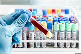 Ważne badania krwi, które powinien wykonać każdy