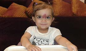 Dziewczynka z Kuwejtu z naczyniakiem. Przeszła skomplikowaną operację