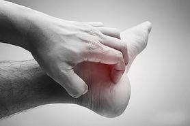Ostroga piętowa - domowe sposoby, leczenie, zapobieganie nawrotom