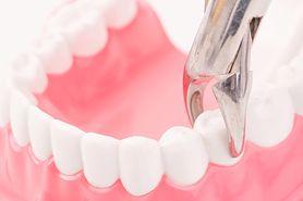Usuwanie zębów w znieczuleniu miejscowym i pod narkozą – wskazania, przebieg, cena