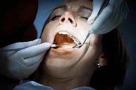 Próchnica - klasyfikacja, przyczyny, objawy, leczenie, profilaktyka, próchnica a prawidłowa higiena jamy ustnej, próchnica wczesna