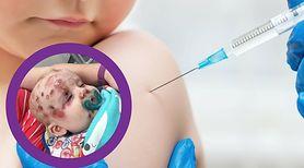 Mama i jej dzieci zakażone. ''Stałam się zagorzałą zwolenniczką szczepień, ponieważ należy myśleć o innych ludziach''