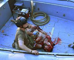 Nieprzytomny przetrwał w wodzie 30 godzin. Nie wiedzą, jak to możliwe