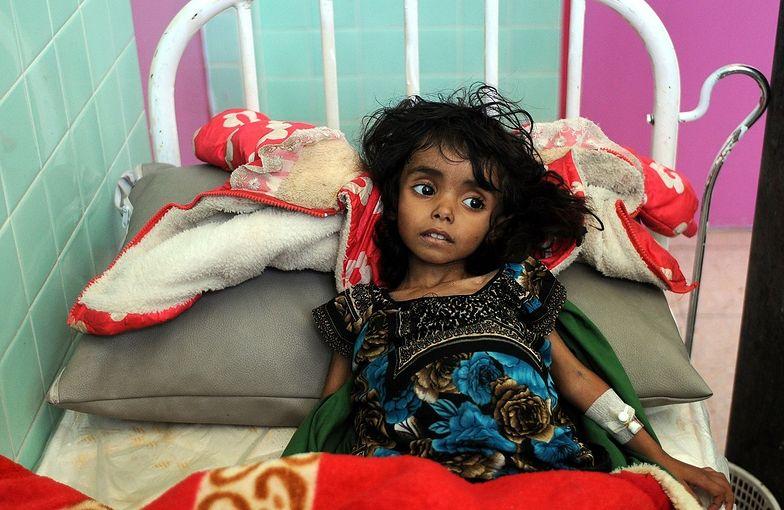 Już zapomnieliśmy o dramacie Jemeńczyków