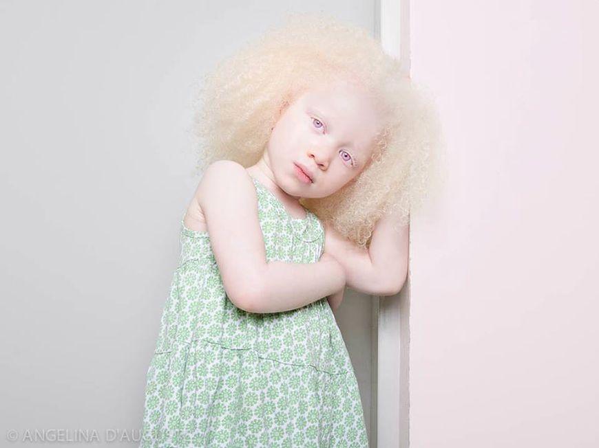 Albinizm – bielactwo wrodzone