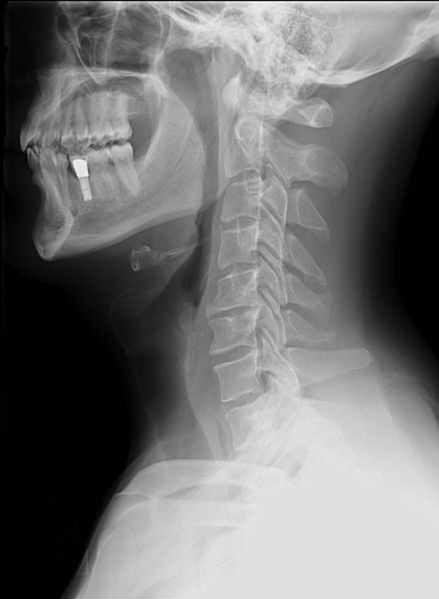 Implant zęba na RTG