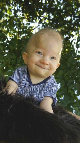 Franek ma 9 miesięcy, a jego nerki przestają pracować. Potrzebny jest przeszczep