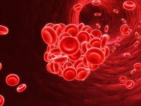 Zakrzepica - charakterystyka, rodzaje, przyczyny, objawy, leczenie