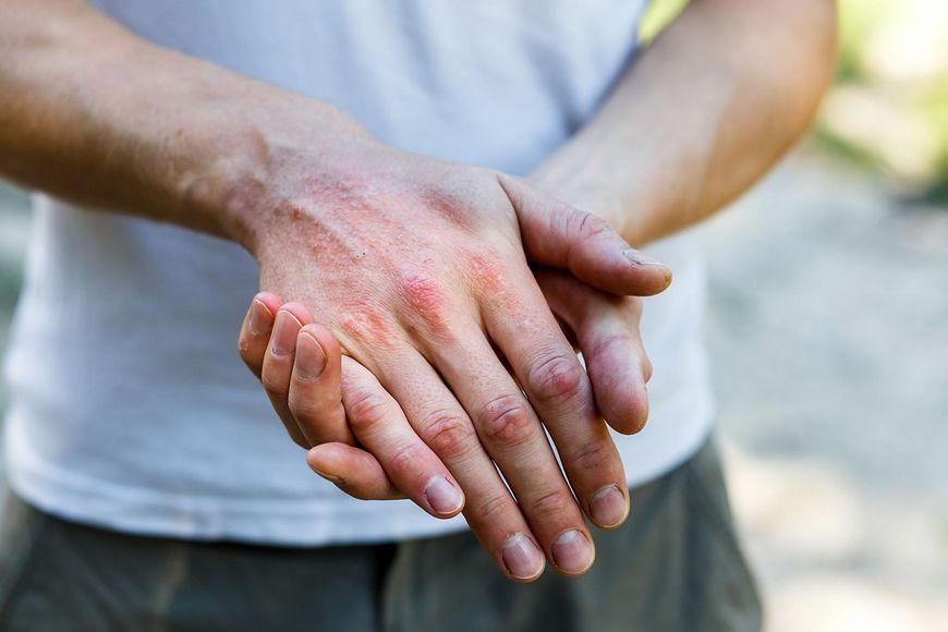 Łuszczyca jest chorobą nieuleczalną, ale można łagodzić jej objawy [123rf.com]