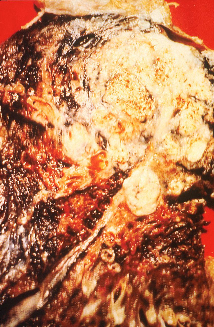 Przekrój nowotworu płuc