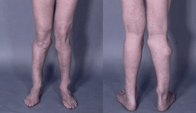 Osoba z koślawymi kolanami