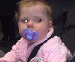 Zdjęcie z wakacji ocaliło jej życie. Biała plama na oczku to groźny sygnał