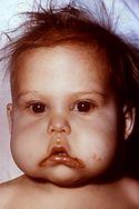 Kwashiorkor u małego pacjenta