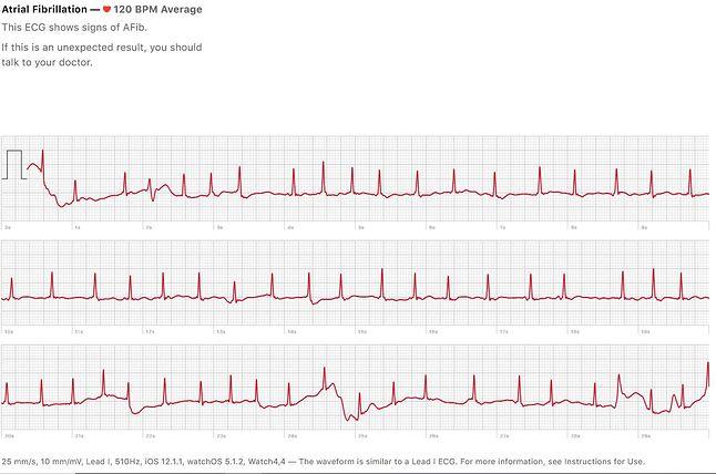 zapis z EKG w Apple Watchu