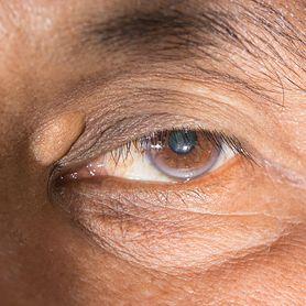 Kępki żółte zwiastunem zawału. Nowe badania
