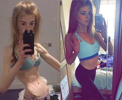 Chorowała na anoreksję. Mówi, że czekolada uratowała jej życie
