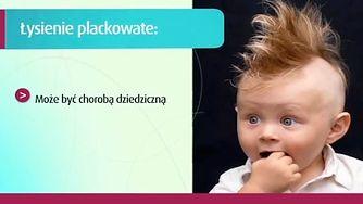 Genetyka w łysieniu plackowatym (WIDEO)