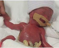 Była najmniejszym noworodkiem świata. Tak dzisiaj wygląda