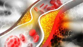 Wysoki poziom cholesterolu może mieć różne przyczyny. Poznaj je (WIDEO)