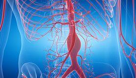 Zabieg operacyjny tętniaka aorty