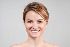 Thermo-lifting twarzy RF – wskazania do zabiegu