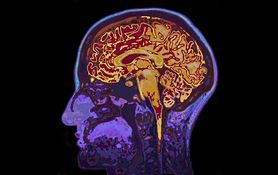 Co warto wiedzieć o udarze mózgu?