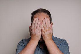 Bielactwo nabyte - przyczyny, objawy, rodzaje, diagnostyka, leczenie