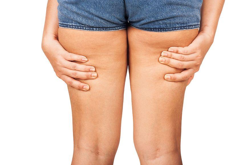 Cellulit u kobiet tworzy się głównie z powodu hormonów