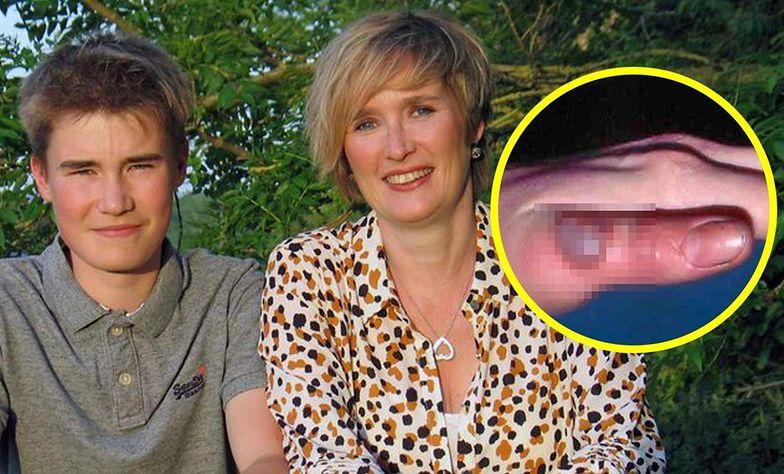 Brychan Edwards i jego mama Ffion Clwyd Edwards. W kółku efekty zarażania odzwierzęcym wirusem.