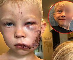 Stanął w obronie siostry i pies rozszarpał mu twarz. Pokazano, jak zagoiła się rana