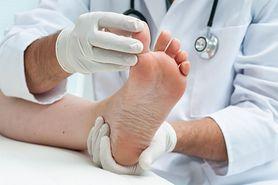 Sposoby na odciski i pęcherze na stopach