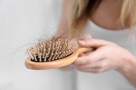 Zabiegi zapobiegające łysieniu - właściwa pielęgnacja, preparaty ziołowe, witaminy i minerały
