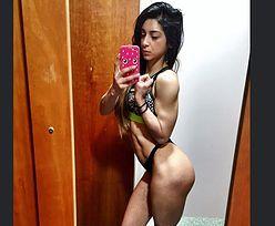 Przez anoreksję groziło jej kalectwo. Niebywała zmiana