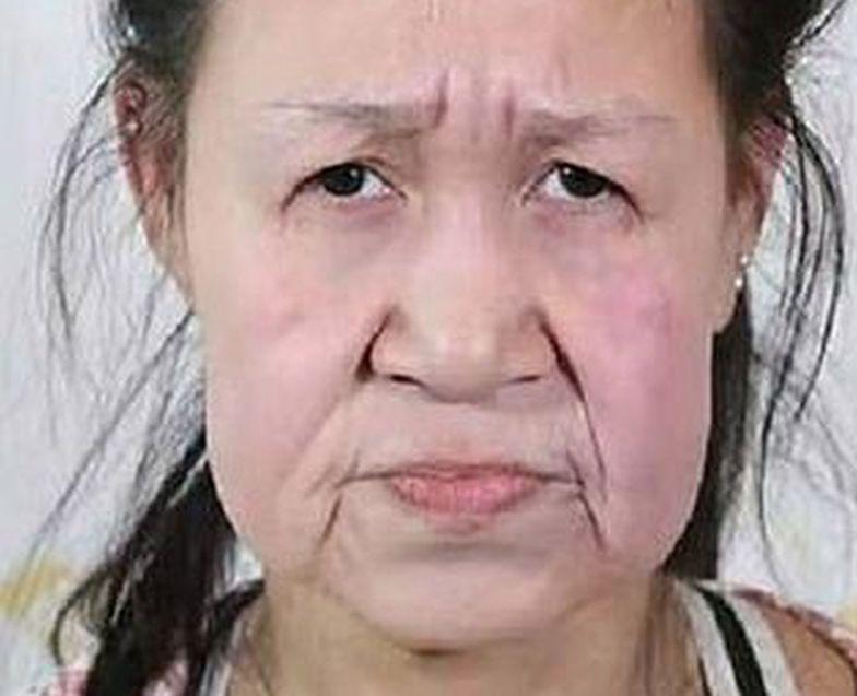 Nastolatka wyglądała jak własna babcia. Dostała nową twarz
