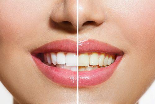 Smile makeover – całkowita zmiana wyglądu zębów