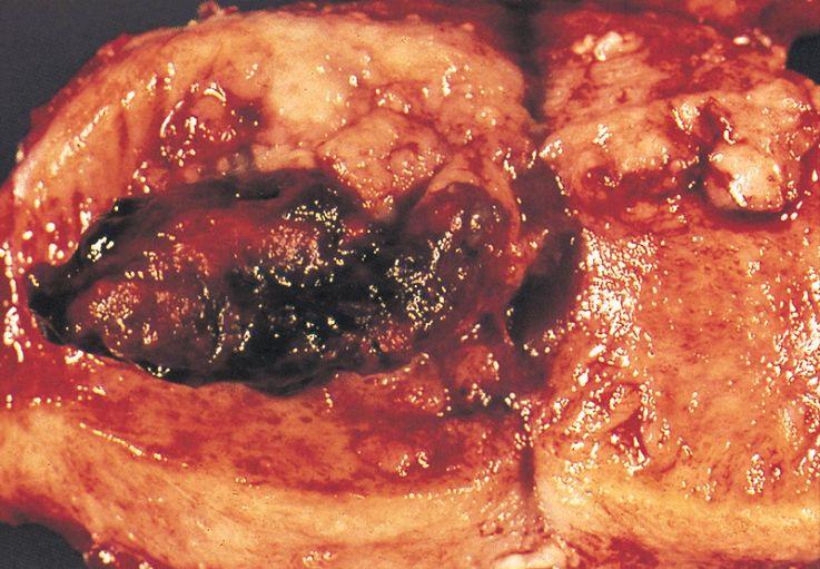 Zdjęcia raka endometrium