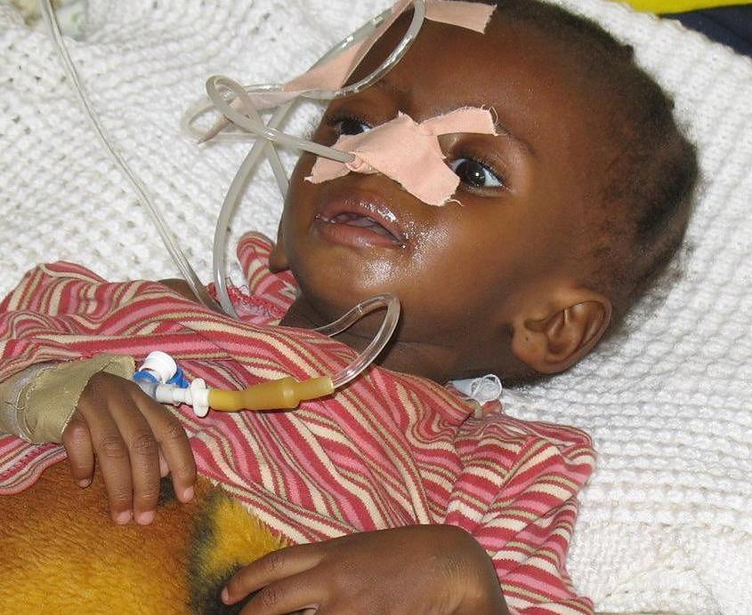 Dziecko z niedożywieniem