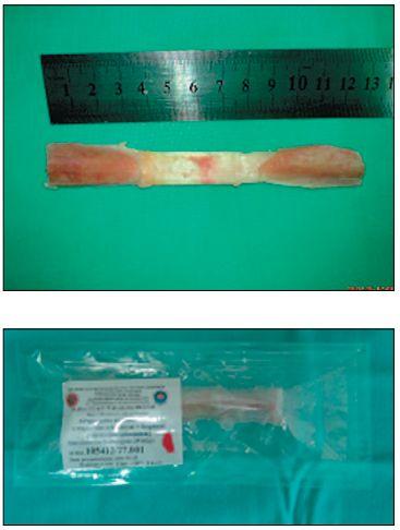 Przeszczep allogeniczny z więzadła rzepki