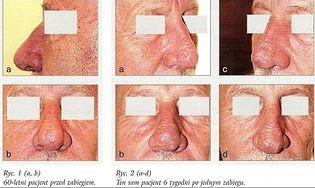 Trądzik różowaty - wygląd pacjenta po zabiegu