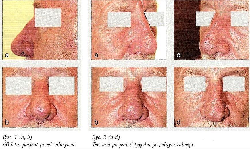 Zmiany na nosie pacjenta
