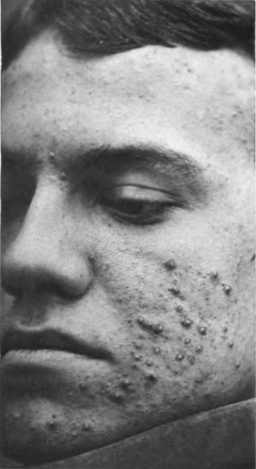 Zdjęcie zmian trądzikowych