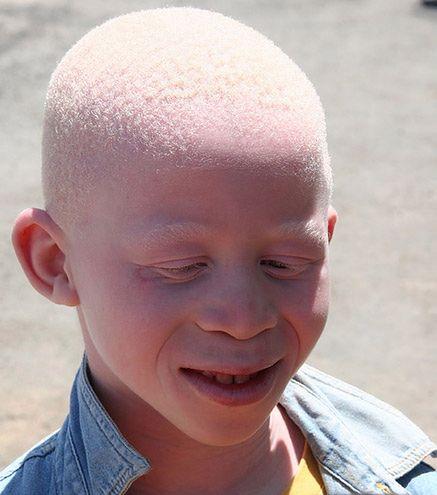 Chłopiec chory na albinizm