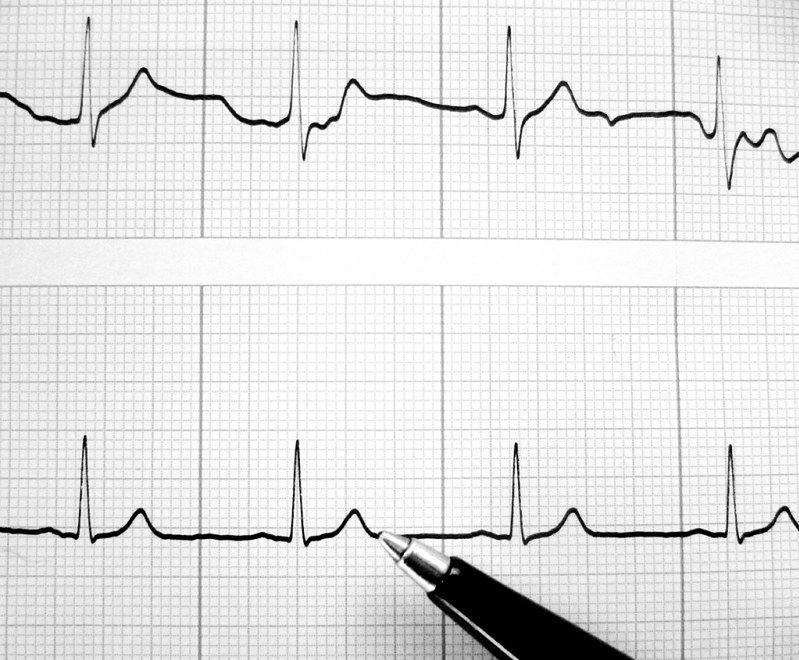 Choroby serca - echo serca