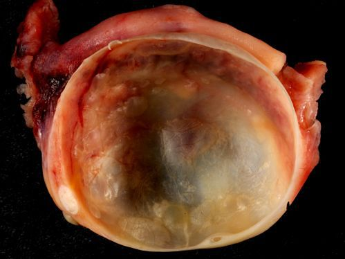 Zdjęcie torbieli jajnika