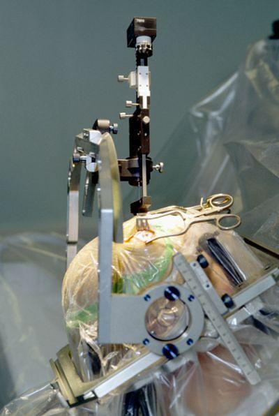 Pacjent w czasie założenia elektrody